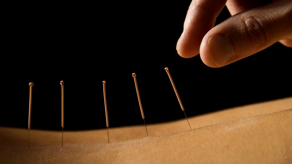 13 Ways Acupuncture Can Change Your Life