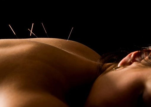 Acupuncture Treatments at Embody Wellness in Vauxhall, South London